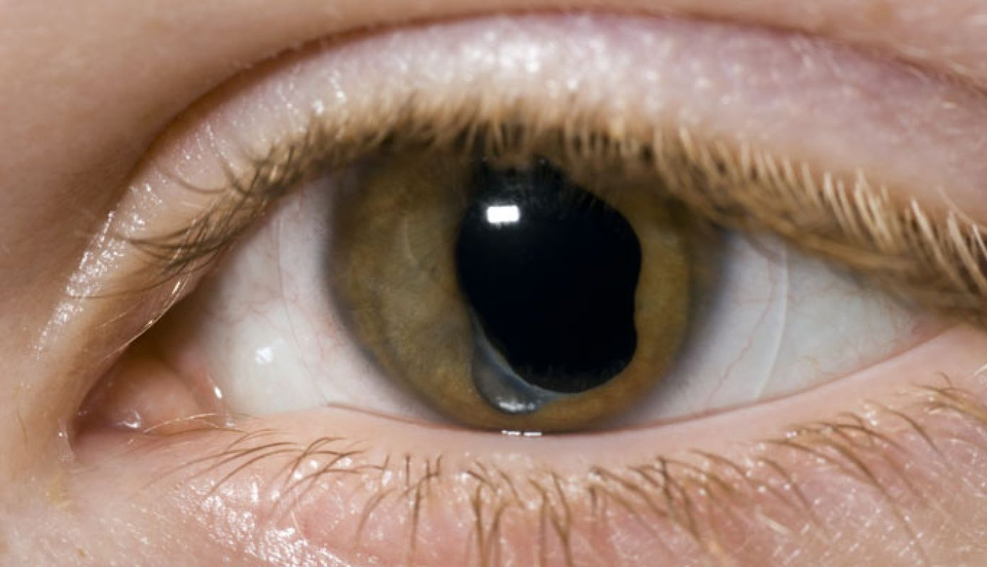 tratamentul vederii cataractei)
